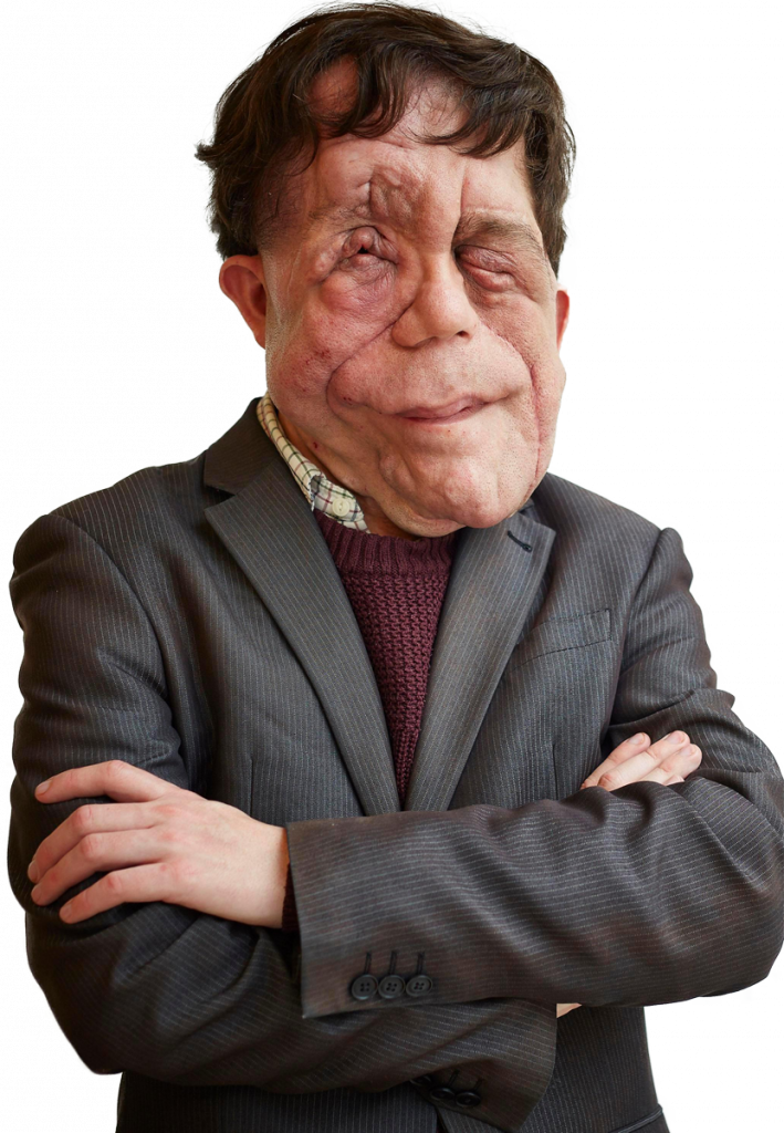 Adam Pearson transparent background png image