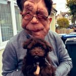 Adam Pearson with her pet dog