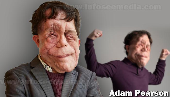 Adam Pearson featured image